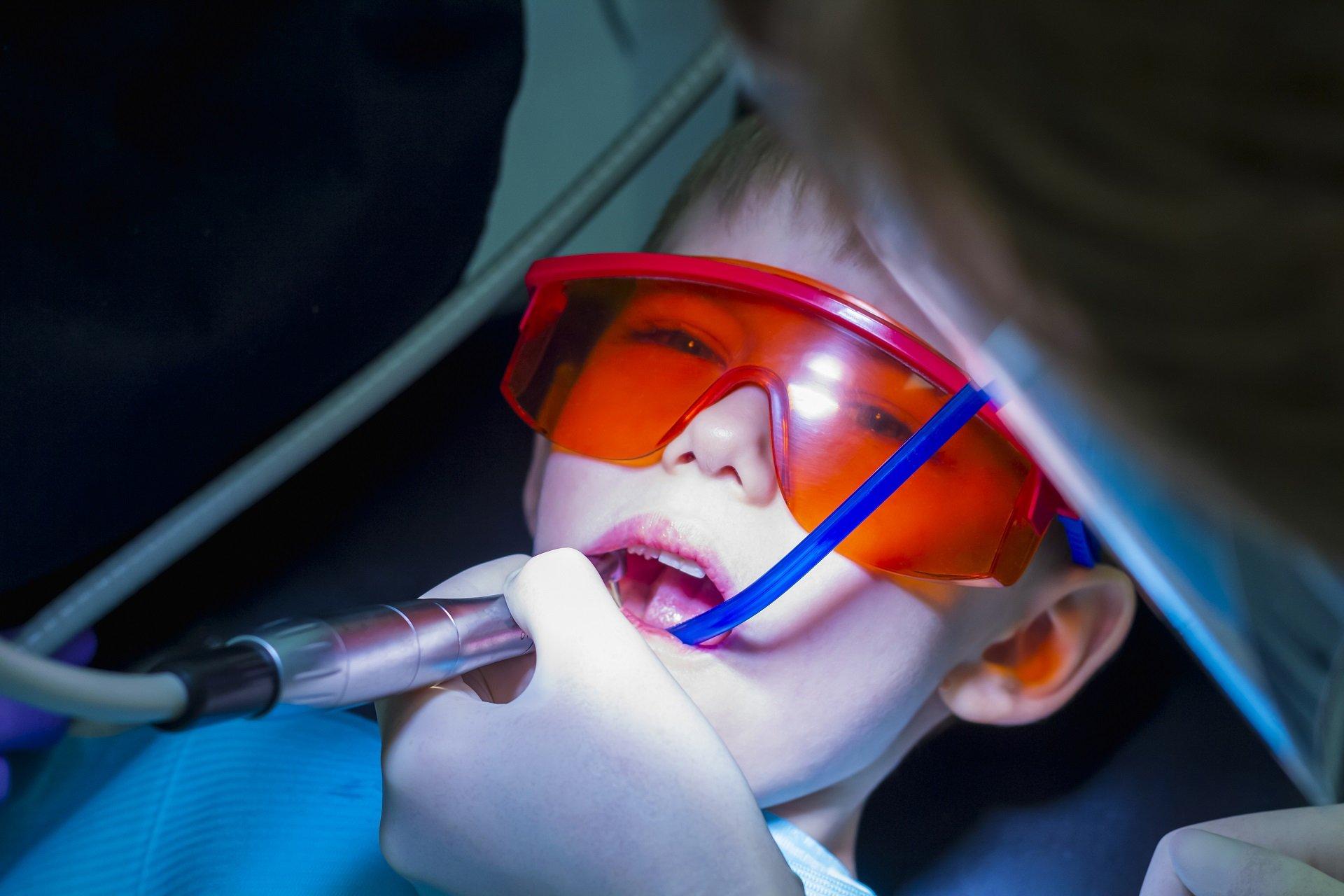 Süt Diş Kanal Tedavisi