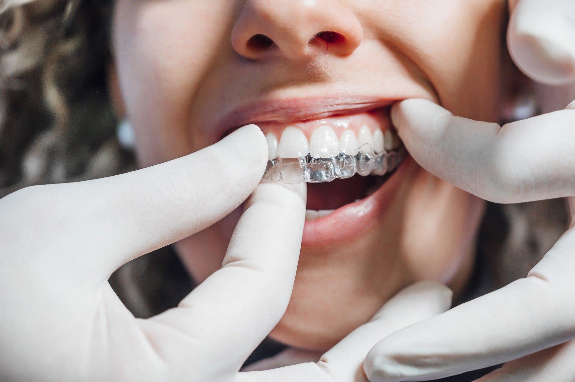 Ortodontik Şeffaf Plak